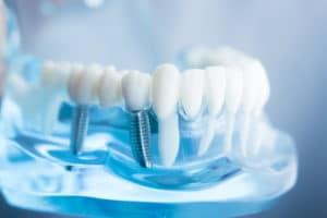 dental-implants-sioux-falls-sd